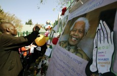 Mandela occasionally 'unstable' but showing resilience