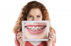 Warning about 'quick-fix' teeth straightening