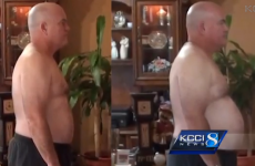 Man eats only McDonalds for 3 months, ends up healthier than he started