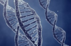 Trinity researchers identify schizophrenia-causing genetic mutation