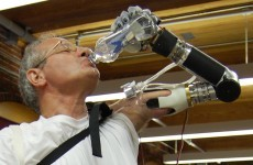 Mind-controlled prosthetic arm approved by US medical authorities