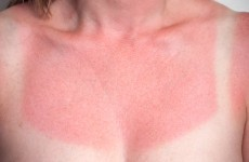 There's a high UV rating today so slather on that sunscreen