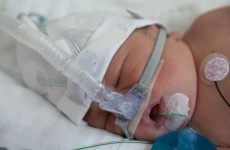 Irish firm hopes to save premature babies with new research