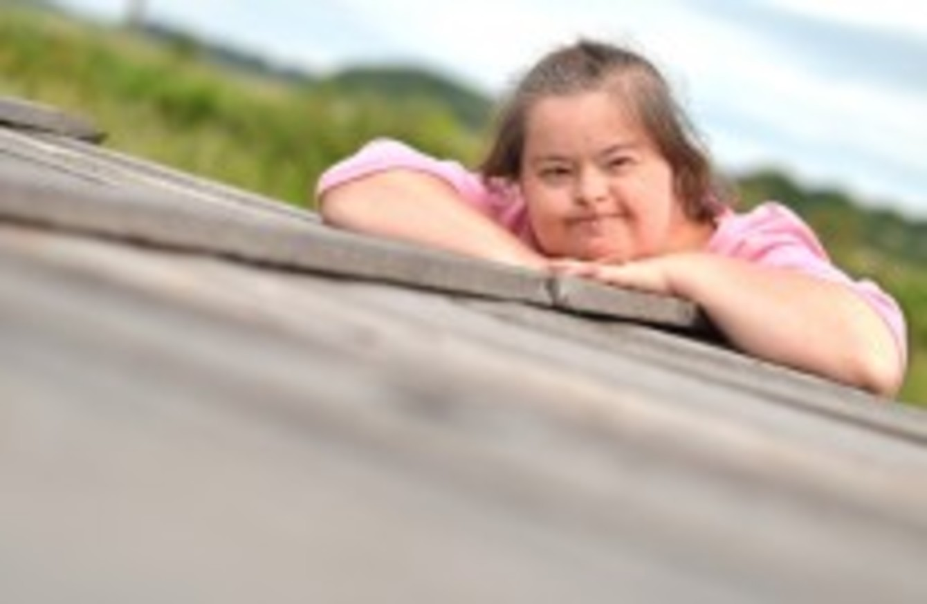 an overview of the developmental disability down syndrome in aging adults Premature aging is a characteristic of adults with down syndrome aging occurs in most individuals with down developmental disability.