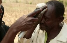 World's first live cataract surgery to be streamed from rural Malawi