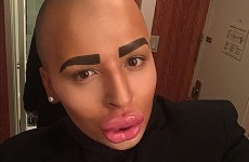 This man has spent over €120k to make himself look like Kim Kardashian