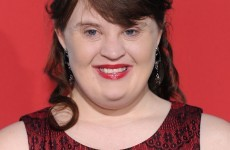 Jamie Brewer is the first model with Down Syndrome to walk in NY Fashion Week