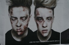 In pictures: ISPCC casts Jedward in a new light