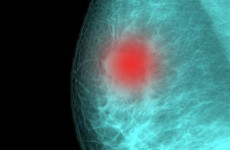 This test means no chemotherapy for some breast cancer patients
