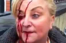Councillor says protest organisers to blame for woman's injuries - not gardaí