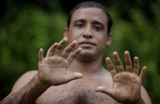 Here's the Cuban man with two extra fingers and two extra toes