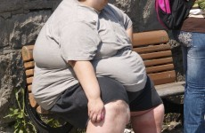 Weight-loss surgery is good for the economy - surgeons