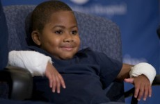 8-year-old who lost his limbs to infection gets a double hand transplant