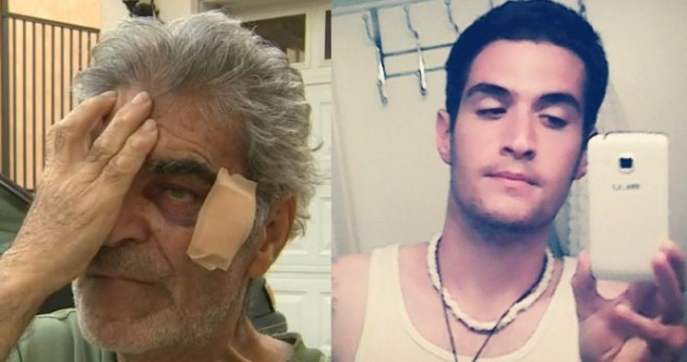 Man (24) charged with supermarket attack on 78-year-old over Nutella samples