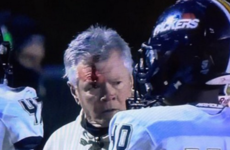 Definitive proof — if it were needed — that headbutting someone wearing a helmet is a bad idea