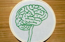 """Galway team pinpoints part of brain which produces """"marijuana-like substances"""" to dull pain"""