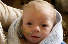 Surgery scheduled for baby Noah after father speaks out