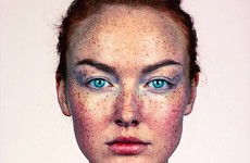 This photographer has dedicated himself to capturing the beauty of freckles