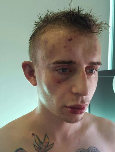 """I thought I was going to die"" - Irish man beaten up twice in one night 'for being gay'"