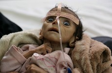 Born in the middle of a war, this baby starved to death after just five months of life