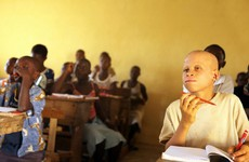"""Malawi albinos face """"extinction"""" if they continue to be murdered for their body parts"""