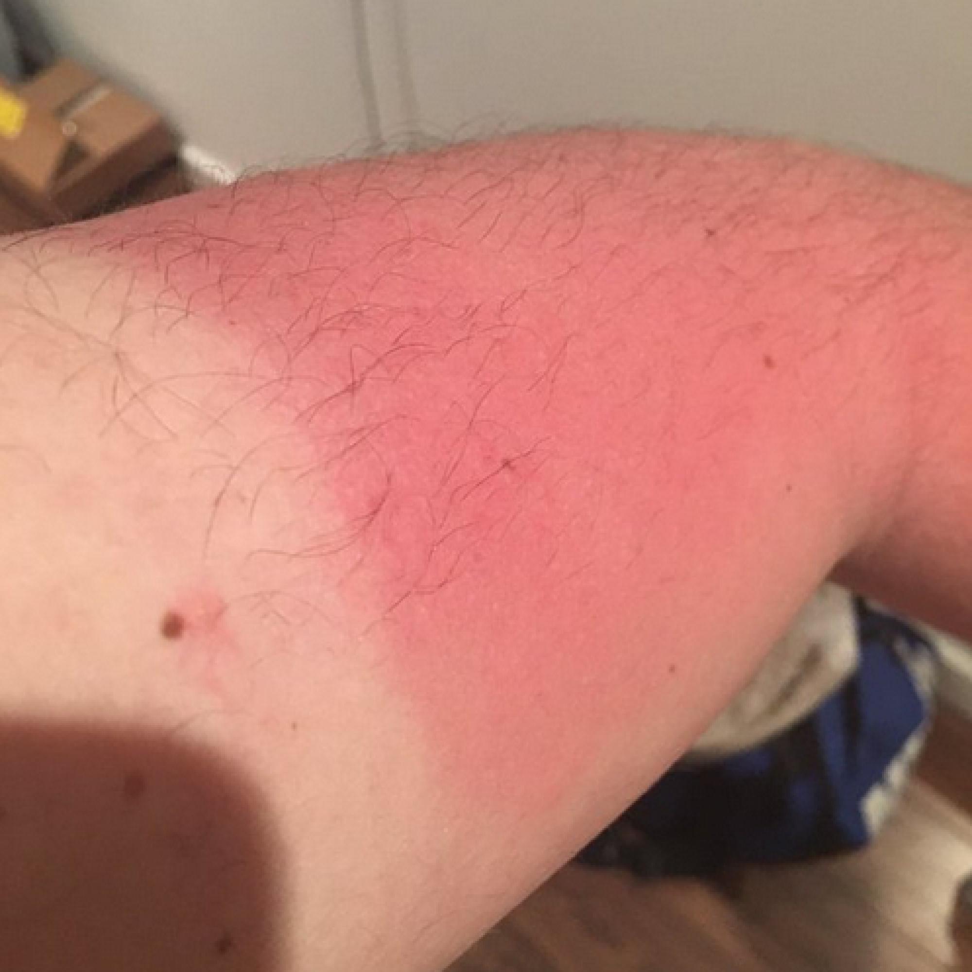 Here's why a farmer's tan is the hottest look this summer