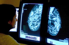 Cancer sufferers living in deprived areas 40% more likely to die