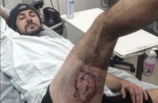 Cyclist hospitalised after iPhone 'explodes' under his leg