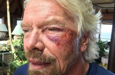 Billionaire Richard Branson thought he was going to die after falling off his bike