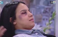 Moroccan state TV broadcasts makeup advice for women for disguising evidence of domestic violence