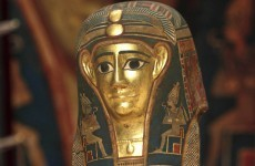 Researchers find cancer in ancient Egyptian mummy