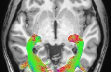 Scientists find visual symptoms that could help early detection of Parkinson's