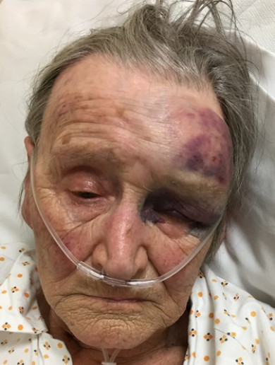 'It simply beggars belief': 88-year-old woman brutally attacked in her own home in Lancashire