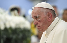 Pope Francis has a black eye after falling in his popemobile