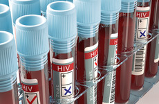 HIV diagnoses rose again last year with 508 new cases