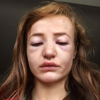 'I thought this could be it,' says 18-year-old student who was assaulted in Letterkenny