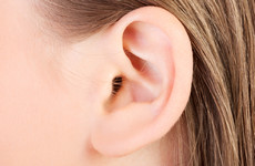 Why do your ears hang low? New research shows the answer to that question can be very complicated