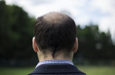 Baldness and premature greying linked to increased risk of early heart disease in men