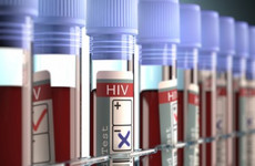 A HIV prevention drug is being made available to Irish pharmacies at a 70% cheaper cost