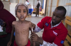 This malnourished 5-year-old girl had her life saved thanks to Irish donations