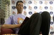"Academics stop world's tallest man - 8'3"" - from growing"