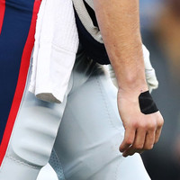 We finally know how bad Tom Brady's hand injury was - and it looks painful