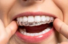 An Irish teeth-straightening startup has raised €10m to double its workforce