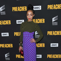 Ruth Negga said it drives her 'f**king mad' that people believe Hollywood is ethnically diverse
