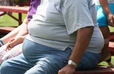 Developing world facing 'obesity epidemic', says major report