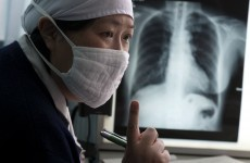 'Extensively drug-resistant' tuberculosis on the rise worldwide