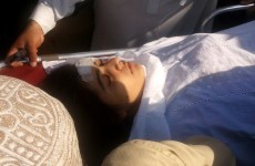 Pakistan medics remove bullet from shot child activist
