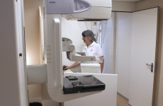 "Breast cancer screening ""reduces deaths, but over-diagnoses"""