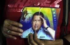 Chavez recovering after 'successful' cancer surgery