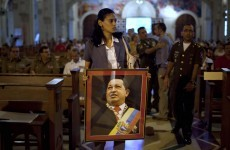 Chavez suffered 'complications' but recovering, his aides say
